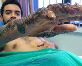 Brasil: la piel del pez tilapia actúa como cura para las quemaduras