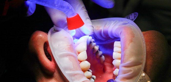 dentist-1864921_640